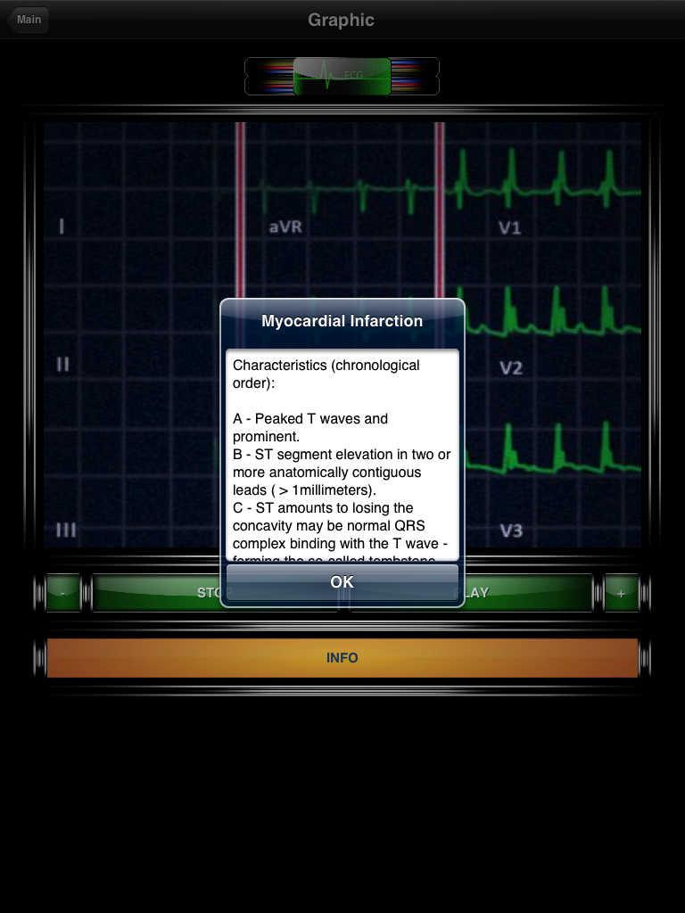 Types ECG Electrocardiogram by MIGUEL ANGEL GARCIA VAZQUEZ