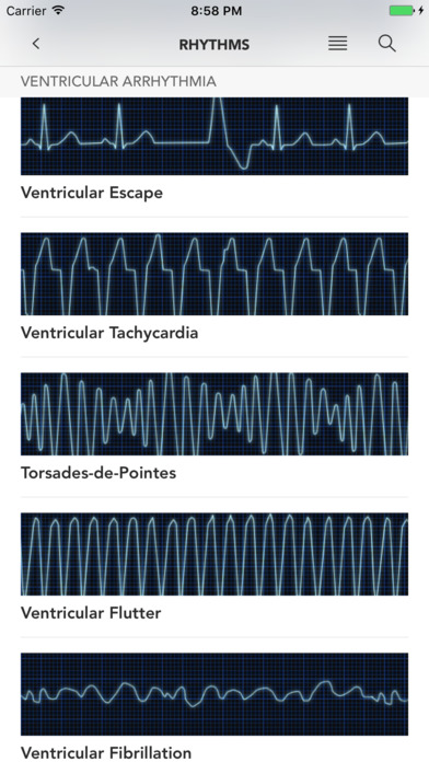 Instant ECG: An Electrocardiogram Rhythms Guide screenshot 3
