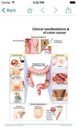 Miniatlas Colon Cancer iPhone Screenshot 3