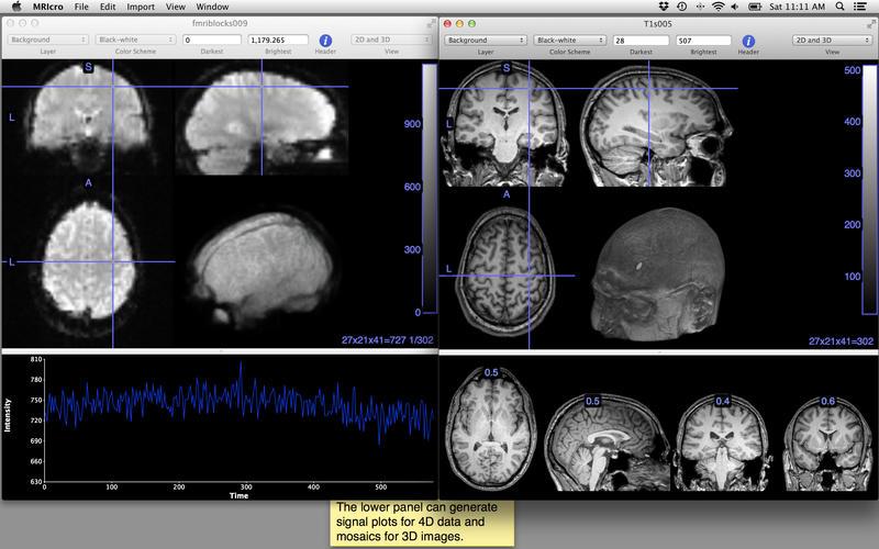 MRIcro Screenshot - 3