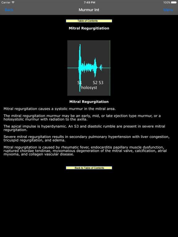iStethoscope Expert Screenshots