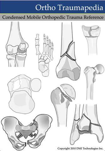 Ortho Traumapedia - náhled