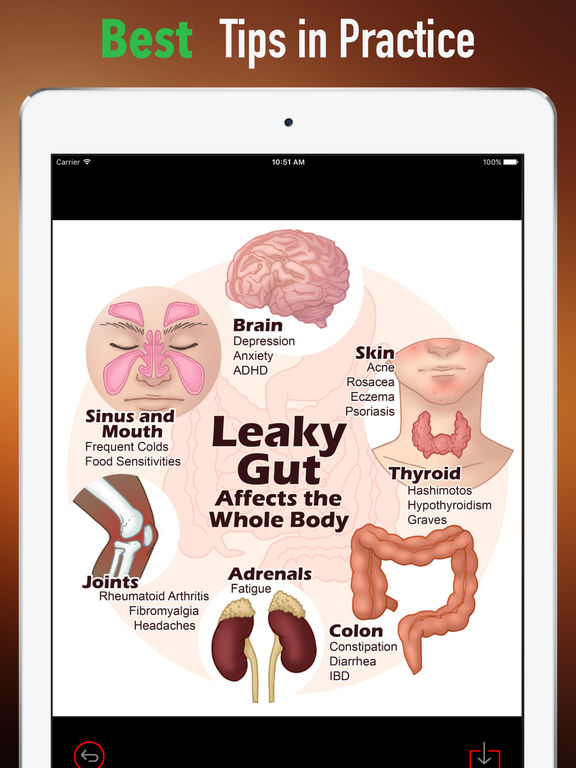 Leaky Gut 101-Symptoms and Digestive System screenshot 9